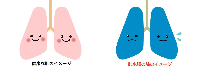 水 症状 に 溜まる 肺 が