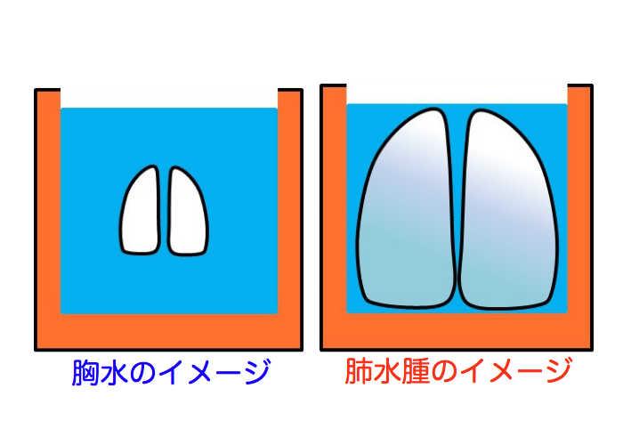 病気 水 が たまる 肺 に